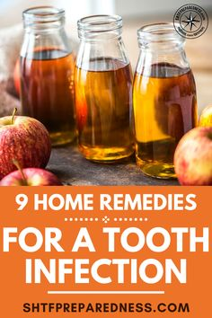 Home remedies for a tooth infection may not work as immediately as a dose of antibiotics and a root canal but they do provide a means of treatment when there are no other options! Natural Cough Remedies, Cold Home Remedies, Natural Cures, Herbal Remedies, Health Remedies, Natural Medicine, Herbal Medicine, Tooth Infection, Remedies For Tooth Ache