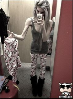 This is NOT beautiful....Anorexia