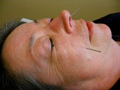 Kotan Acupuncture specializes in Classical Japanese Acupuncture. Treat a range of ailments via pain-free acupuncture and moxibustion treatments. Natural, Ear, Continue, Link, Nursing, University, Floral, Community, People