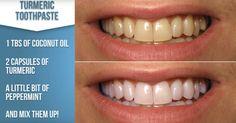 3-Ingredient Homemade Teeth Whitening