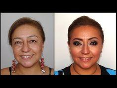 Cirugía de Párpados sin Cirugía -Eyelid Surgery without Surgery