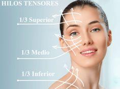 hilos-tensores-region-facial-compressor