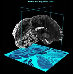 BigBrain - free, publicly available online tool that gives access to a detailed view of human brain anatomy.