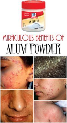 Powder Hair Removal Get rid of dandruff, acne or irritations with alum powder Underarm Hair Removal, Hair Removal Diy, Hair Removal Cream, Back Acne Treatment, Getting Rid Of Dandruff, Baby Acne, Unwanted Hair, How To Get Rid Of Acne, Skin Care Tips