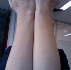 How To Get Rid Of Hair On Arms?: Hair On Arms - The Women Styles