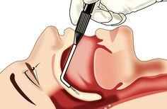 L'uvulopalatofaringoplastica è un intervento chirurgico in grado di risolvere il problema del russamento e dell'apnea ostruttiva nel sonno.