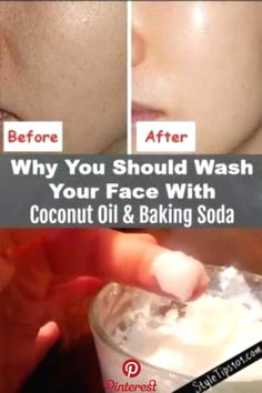This baking soda and coconut oil face mask for acne scars will deeply cleanse the skin, exfoliate, and prevent acne all in one! You've undoubtedly seen tons of baking soda and coconut oil face mask recipes all over the Internet, but have you actually Baking With Coconut Oil, Coconut Oil For Face, Coconut Oil Face Cleanser, Coconut Oil Beauty, Coconut Oil Facial, Coconut Oil Acne, Uses For Coconut Oil, Coconut Oil Benefits, Diy Coconut Oil Hair Mask