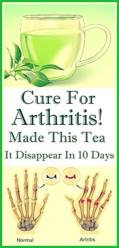 Cure For Arthritis! Made This Tea It Disappear In 10 Days