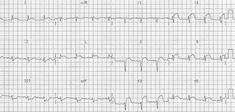 ST elevation myocardial Infarction (STEMI) occlusion of the left anterior descending artery (LAD) EKG Library Heart Procedures, Arteries Anatomy, Bundle Branch Block, Cardiogenic Shock, Acute Coronary Syndrome, Advance Reading, Myocardial Infarction