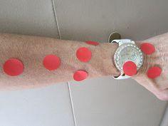 "SINGING TIME IDEA: Primary Singing Time: ""Singing Measles"""