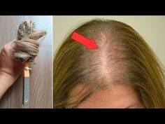 Cabelo não cai mais, Esse é o Segredo da Antiqueda para crescimento! - YouTube Face E, Youtube, Ear, Hair Styles, Beauty, Pereira, Homemade Face Creams, Female Hair Loss, Homemade Hair