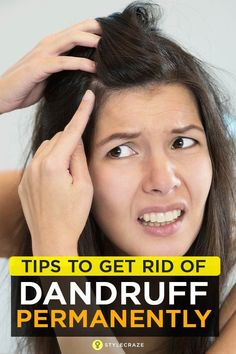 38 Simple Tips To Get Rid Of Dandruff Permanently Loading. 38 Simple Tips To Get Rid Of Dandruff Permanently How To Reduce Dandruff, How To Treat Dandruff, Getting Rid Of Dandruff, Treating Dandruff, Dandruff Solutions, Home Remedies For Dandruff, Hair Remedies For Growth, Hair Growth, Natural Remedies