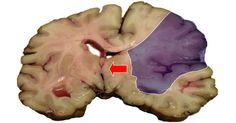 Udar mózgu można dużo wcześniej rozpoznać, a przede wszystkim uniknąć bez szkód! Ludzie ze swojej niewiedzy ignorują te reakcje organizmu, a to właśnie one mówią, że jest źle. Po czym poznać? Pamiętaj, jeśli poczujesz dziwne...