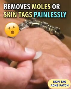 Mole Removal, Skin Tag Removal, Hair Removal, Health And Beauty Tips, Health Tips, Useful Life Hacks, Amazing Life Hacks, Skin Treatments, Health Products