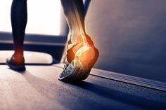 Fersenschmerzen: Pein auf Schritt und Tritt