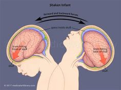 Shaken baby syndrome represents a type of damage caused to the brain that happens when a child is shaken violently. Trembling can cause bleeding in the brain (subdural hemorrhages) or blood loss in… Human Growth And Development, Child Development, Teaching Plan, Teaching Kids, Teaching Resources, Parenting Classes, Kids And Parenting, Shaken Baby Syndrome, Medical Information