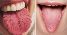 Você provavelmente sabe que a língua desempenha um grande papel na forma como você detecta o sabor, mas você sabe o que mais ela pode fazer?Fique sabendo que ela não apenas tem as importantes funções de identificar sabores e ajudar a pronunciar palavras.