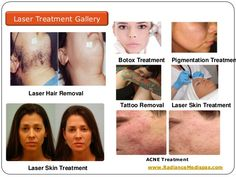 42 Best Radiancemedispas Images Laser Treatment Acne Scar