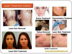 42 Best Radiancemedispas Images Laser Treatment Acne Scar