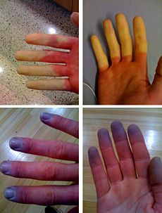 Not a pretty sight but the Raynauds Phenomenon (not same as Raynauds Syndrome which is nothing, really) is a symptom of Scleroderma which is just one piece of my Mixed Connective Tissue Disease Síndrome De Ehlers Danlos, Ehlers Danlos Syndrome, Syndrome De Raynaud, Chien Halloween, Raynaud's Disease, Rare Disease, Raynaud's Phenomenon, Examen Clinique, Vascular Ultrasound