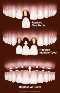 Central Dental Care, located at: 9315 N Central Ave, Phoenix AZ 85020, has been…
