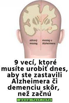 9 vecí, ktoré musíte urobiť dnes, aby ste zastavili Alzheimera či demenciu skôr, než začnú Dementia