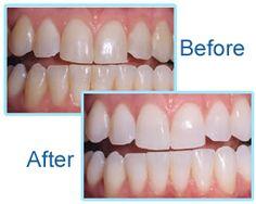 What is teeth whitening?  #teethwhitening #teethwhiteningprocedures #chairsidepowerwhitening