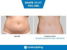 Shape what you see with the CoolSculpting procedure! Find out if you're a candidate: http://www.coolsculpting.com/am-i-a-candidate/.  Rules of Engagement: on.fb.me/1Etu0Hm