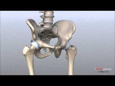 Anatomía de la articulación de la cadera.