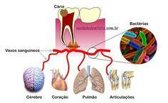 La importancia de tener dientes sanos, evita problemas en otros órganos.