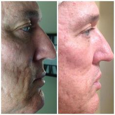 Check out Mike's REAL RESULTS with Nerium!    Men love NeriumAD too. It's so easy one step at night! Get your Nerium at www.cgaughan.theneriumlook.com