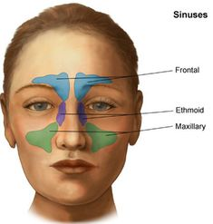 Natural Products to Heal Sinusitis.  Including:  Inhale steam with Eucalyptus or Menthol, salt &  baking soda rinse, lemon juice with horseradish root,  Bromelain, Elderflower, Cayenne, Garlic, and many aroma therapy oils