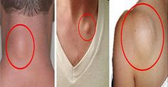How To Get Rid Of Skin Lumps (Lipomas) Naturally!