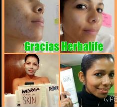 Check out the results from using the Herbalife SKIN line of skin care products! Click the link in our bio to see our skin care catalog. Herbalife Distributor, Herbalife Weight Loss, Skin Line, Catalog, Link, Check, Products, Brochures, Beauty Products