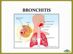 Asthma is a serious condition that can be dangerous when a person was under asthma attack. It is a lung disease cause by the production of excess mucus Natural Asthma Remedies, Ayurvedic Remedies, Essential Oils For Asthma, Krill Oil, Asthma Symptoms, Peanut Oil, Natural Treatments, Lunges, Allergies