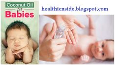 Coconut Oil for Babies Valley Fever, Cradle Cap, Coconut Oil Uses, Insect Bites, Healthy Tips, Canker Sores, Cold, Babies, Babys