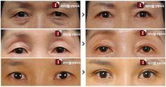 [Upper Blepharoplasty] plastic surgery in korea, cometic surgery in korea, anti-aging, eye surgery, double eyelid surgery, blepharoplasty