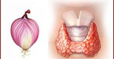 Onion is a well known to be a skin cleaner, bacteria killer, and blood purifier.Another way onion can be helpful is in the case of a disturbed thyroid.Igor Knjazkin, a doctor from Sant Petersburg, wrote a Thyroid Issues, Thyroid Gland, Thyroid Problems, Thyroid Cancer, Thyroid Disease, Red Onion Recipes, Hypothyroidism, Natural Medicine, Alternative Health