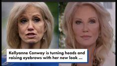 Cosmetic Procedures, New Look, Eyebrows, Cosmetics, Eye Brows, Brows, Brow, Eyebrow, Arched Eyebrows