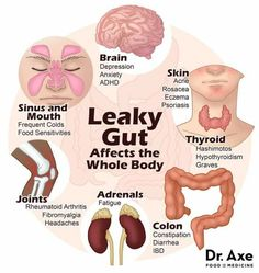Leaky Gut Diet and Treatment Plan, Including Top Gut Foods 4 steps to heal leaky gut syndrome symptoms. Very helpful with supplements and foods to avoid and foods to add. Health And Nutrition, Health Tips, Health Facts, Health Articles, Health Benefits, Health Fitness, Intestino Permeable, Leaky Gut Diet, Leaky Gut Heal