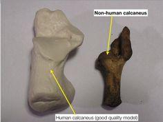 Comparison of human vs non human calcaneus via @WKemp_MT_FPDoc on Twitter