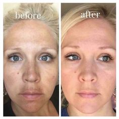 Check out Ashley's results!  She's a mama to 5 little ones. Her 5th pregnancy brought on a pretty severe case of melasma, primarily over her upper lip, a little bit on her cheeks, on her nose and also above her eyebrows.  She has been on our REVERSE Regimen for two months and these are her results ~ INCREDIBLE!!   https://esteeshaffer.myrandf.com/Shop/Reverse