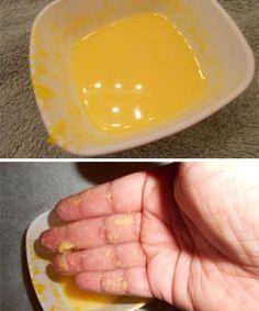 rum & egg hair treatment for curly porous hair