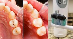 New Toothpaste Is Leaving Dentists Without Work, It Fixes Cavities As They Appear