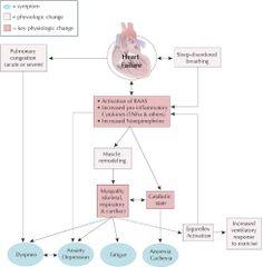 Insuficiencia Cardíaca Animación | Insuficiencia Cardiaca ...
