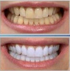5 Receitas Caseiras para clarear os dentes -