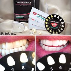 Great results with Whitening Lightning Dial a Smile at home teeth whitening kit! Check out review here http://instagram.com/she_looks_rosie  Get yours @ http://www.whiteninglightning.com & use coupon code Rosie to get 25% off!