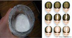 Мойте волосы содой и все вам обзавидуются.  Все мы знаем о множестве преимуществ пищевой соды, что мы можем использовать ее не только для приготовления пищи и уборки, но и в лечении целого ряда забол…