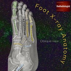 The edge of that metatarsal broke Radiology Schools, Radiology Student, Radiology Imaging, Medical Imaging, Human Body Anatomy, Foot Anatomy, Medical Anatomy, Medical Coding, Medical Field