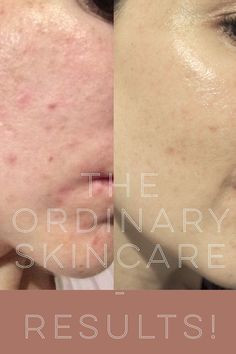 Does The Ordinary Skincare work? Read on to find out. Skip to the end for wowsers Before and After pics. Following my previous post on my The Ordinary Skincare Regime for oily acne prone skin, I re…